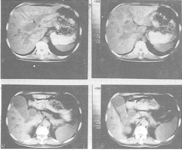 Figure 2. CT Scan of the liver displaying adenocarcinoma of the head of pancreas with a distended gallbladder.