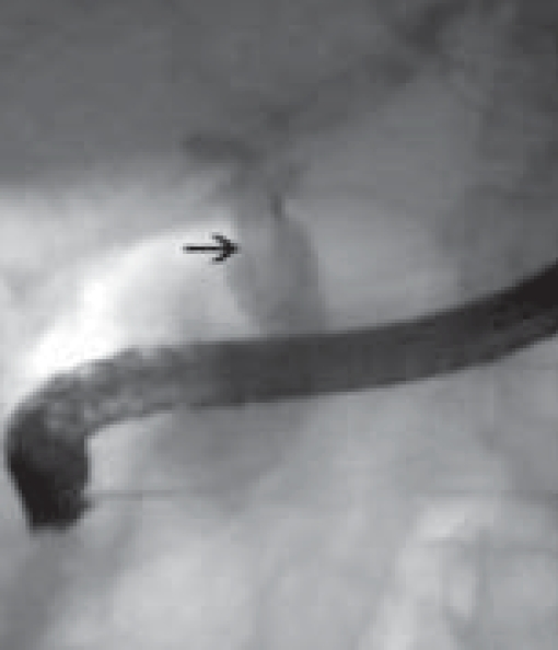 Cholangiographic image showing an elongated filling defect