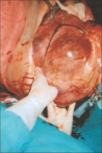 Figure 1: The tumor during surgery