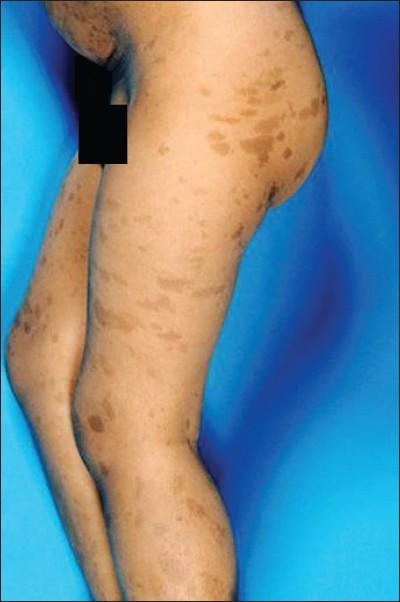 Figure 1 :Hyperpigmented skin lesions involving the lower half of the body