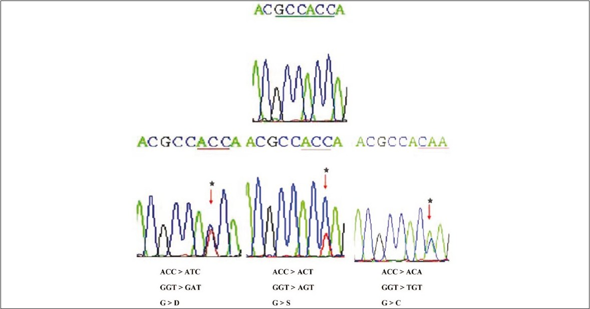 Figure 2 :Partial nucleotide sequences (reverse) of the normal and mutants in exon 1 of Kirsten ras oncogene
