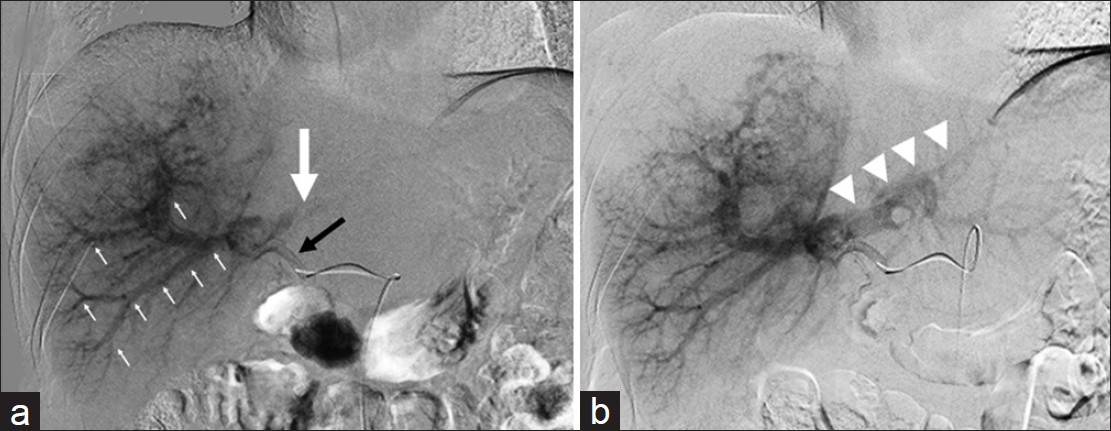 Figure 2: (a) Initial planning DSA of the replaced right hepatic artery (black arrow) demonstrating arterio-portal shunting into the right portal veins (small white arrows). No opacification of the left portal vein (large white arrow); (b) DSA of the same artery 2 weeks later demonstrating opacification of the left portal veins (white arrowheads)