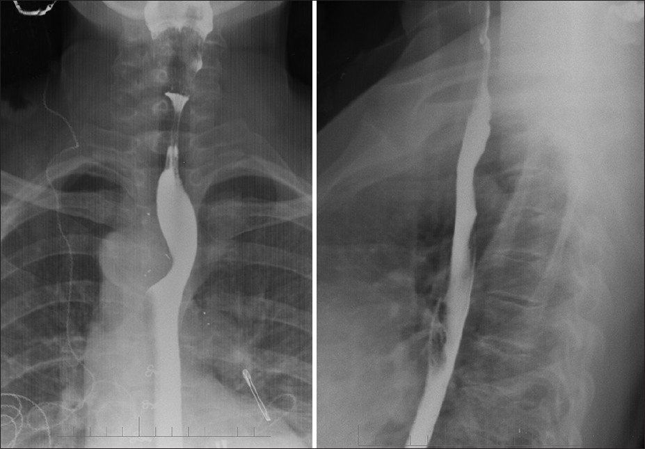 Figure 1: Barium swallow shows smooth external indentation on the esophagus from right side (A) and from posterior aspect (B) with slight hold up of contrast